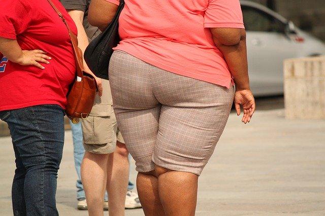 obezita, velký zadek